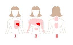 Διάνυσμα επίθεσης καρδιών infographic Συμπτώματα επίθεσης καρδιών Πώς να αναγνωρίσει μια επίθεση καρδιών Στοκ φωτογραφίες με δικαίωμα ελεύθερης χρήσης