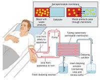 Διάλυση νεφρών διανυσματική απεικόνιση