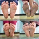 Διαβητική δοκιμή ποδιών Στοκ φωτογραφίες με δικαίωμα ελεύθερης χρήσης