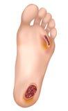 διαβητικό πόδι διανυσματική απεικόνιση