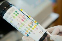 Διαγνωστικές λουρίδες δοκιμής αντιδραστηρίων ούρων Στοκ Φωτογραφία