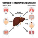 Διαδικασία της ιατρικής αφίσας κινούμενων σχεδίων αποτοξίνωσης και αποβολών διανυσματική απεικόνιση