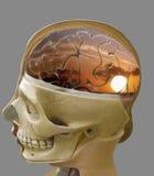 Διακοπή του εγκεφάλου, ηλιοβασίλεμα στοκ εικόνα