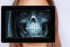 Διαλογή Roengen του προσώπου με ένα tablett στοκ εικόνα με δικαίωμα ελεύθερης χρήσης