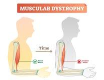 Διανυσματική απεικόνιση για τη μυϊκή δυστροφία Συγκρινόμενος κανονικός μυς και ατροφημένος μυς Σχέδιο με τον υγιή και αδύνατο άνθ διανυσματική απεικόνιση