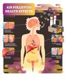 Διανυσματική απεικόνιση επίπτωσης στην υγεία ατμοσφαιρικής ρύπανσης Αιτία του προβλήματος πνευμόνων ελεύθερη απεικόνιση δικαιώματος