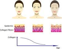 Διανυσματική απεικόνιση με τη διαδικασία γήρανσης, σχέδιο για τις cosmetological εικόνες απεικόνιση αποθεμάτων