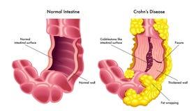 Διανυσματική απεικόνιση του εντέρου με την ασθένεια Crohns ελεύθερη απεικόνιση δικαιώματος