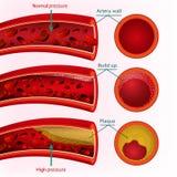 Διανυσματική εικόνα αίματος Στοκ Εικόνες