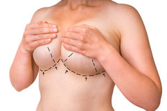 Διαστιγμένες γραμμές στο θηλυκό σώμα για την ανύψωση και την αύξηση στηθών Στοκ εικόνα με δικαίωμα ελεύθερης χρήσης