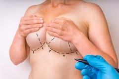 Διαστιγμένες γραμμές στο θηλυκό σώμα για την ανύψωση και την αύξηση στηθών Στοκ φωτογραφία με δικαίωμα ελεύθερης χρήσης