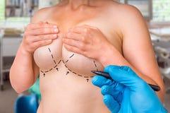 Διαστιγμένες γραμμές στο θηλυκό σώμα για την ανύψωση και την αύξηση στηθών Στοκ φωτογραφίες με δικαίωμα ελεύθερης χρήσης
