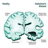 Διατομή του ανθρώπινου εγκεφάλου Υγιής εγκέφαλος έναντι Alzh διανυσματική απεικόνιση