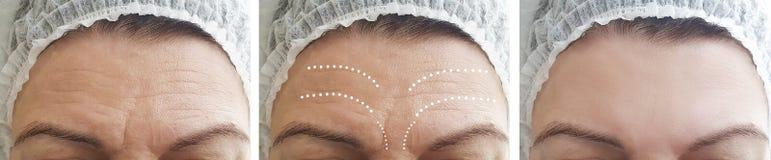 Διαφορά αναγέννησης ιατρικής αφαίρεσης ρυτίδων δερμάτων γυναικών μετά από cosmetology κολάζ την αντίθεση αναγέννησης στοκ φωτογραφία