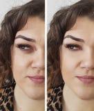 Διαφορά ρυτίδων γυναικών πριν και μετά Στοκ Εικόνα
