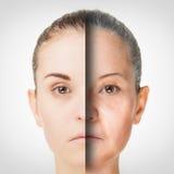 Διαδικασία γήρανσης, διαδικασίες δερμάτων αντι-γήρανσης αναζωογόνησης Στοκ φωτογραφίες με δικαίωμα ελεύθερης χρήσης