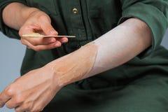 Διδακτική τρίχα που αφαιρεί το γλυκασμό, depilation, κήρωμα στοκ φωτογραφία