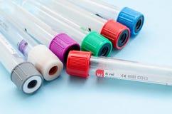 Δοκιμή δειγμάτων αίματος και κενό αίμα σωλήνων για τη διαλογή εξετάσεων αίματος στοκ φωτογραφία με δικαίωμα ελεύθερης χρήσης
