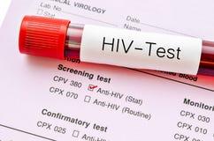 Δοκιμή HIV, μορφή διαγνωστικής εξέτασης μόλυνσης HIV Στοκ εικόνες με δικαίωμα ελεύθερης χρήσης