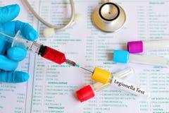 Δοκιμή Legionella Στοκ εικόνα με δικαίωμα ελεύθερης χρήσης