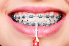 Δόντια βουρτσίσματος γυναικών με τα στηρίγματα που χρησιμοποιούν τη βούρτσα Στοκ εικόνα με δικαίωμα ελεύθερης χρήσης