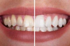 Δόντια γυναίκας πριν και μετά από τη λεύκανση στοκ φωτογραφίες