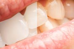Δόντια γυναικών πριν και μετά από τον οδοντίατρο που λευκαίνει τη διαδικασία Στοκ φωτογραφία με δικαίωμα ελεύθερης χρήσης