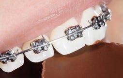 Δόντια με τα οδοντικά στηρίγματα που δαγκώνουν τη σοκολάτα Στοκ Φωτογραφίες