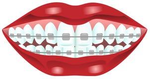 Δόντια με τα στηρίγματα Στοκ Εικόνες