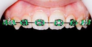 Δόντια με τα στηρίγματα στοκ φωτογραφία με δικαίωμα ελεύθερης χρήσης