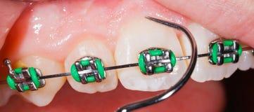 Δόντια με τα στηρίγματα στοκ φωτογραφίες
