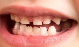Δόντια μωρών Μακροεντολή στοκ εικόνες