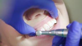 Δόντια που γυαλίζουν τη διαδικασία Χέρια οδοντιάτρων που λειτουργούν με το οδοντικό τρυπάνι υψηλής ταχύτητας απόθεμα βίντεο