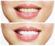 Δόντια πριν και μετά από τη λεύκανση στοκ φωτογραφίες