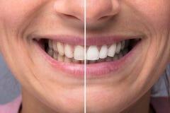Δόντια προσώπων πριν και μετά από τη λεύκανση στοκ εικόνες