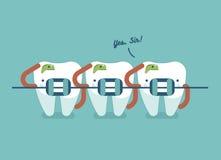 Δόντια στηριγμάτων της οδοντικής υγειονομικής περίθαλψης διανυσματική απεικόνιση