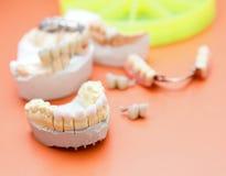 Δόντια Zircon Στοκ εικόνες με δικαίωμα ελεύθερης χρήσης