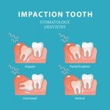 Δόντι ενσφήνωσης Διάνυσμα στοματολογίας οδοντιατρικής Στοκ Εικόνες