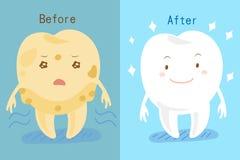 Δόντι που λευκαίνει πριν και μετά Στοκ Εικόνες