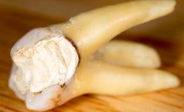 Δόντι που σχίζεται Μακροεντολή στοκ φωτογραφίες