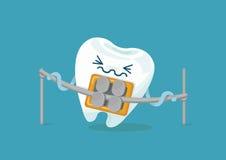 Δόντι στηριγμάτων απεικόνιση αποθεμάτων