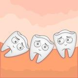 Δόντι φρόνησης - απεικόνιση Στοκ Εικόνες