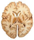 Εγκέφαλος - διατομή Στοκ Εικόνα