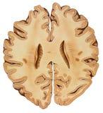 Εγκέφαλος - χαμηλότερη διατομή περιοχών Στοκ Φωτογραφία