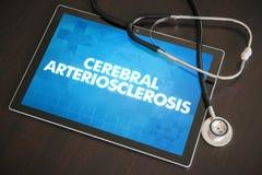 Εγκεφαλική arteriosclerosis (νευρολογική αναταραχή) διάγνωση Στοκ Εικόνες