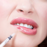 Εγχύσεις Botox Στοκ Εικόνα