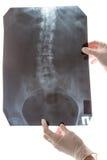 Εικόνα ακτίνας X σπονδυλικών στηλών στο λευκό Στοκ εικόνες με δικαίωμα ελεύθερης χρήσης