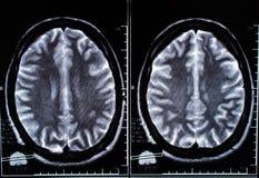 Εικόνα ακτίνας X της υπολογισμένης εγκέφαλος τομογραφίας Στοκ φωτογραφία με δικαίωμα ελεύθερης χρήσης