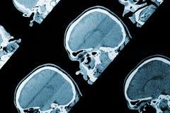Εικόνα ανίχνευσης MRI του κεφαλιού ως ιατρικό υπόβαθρο Στοκ Εικόνες