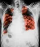 Εικόνα θωρακικής ακτίνας X που παρουσιάζει μόλυνση πνευμόνων Στοκ φωτογραφίες με δικαίωμα ελεύθερης χρήσης